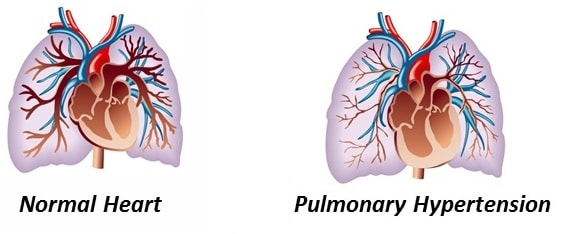 Pulmonary Hypertension Explained